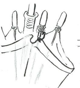 透明ジャンプ傘露先破損の修理